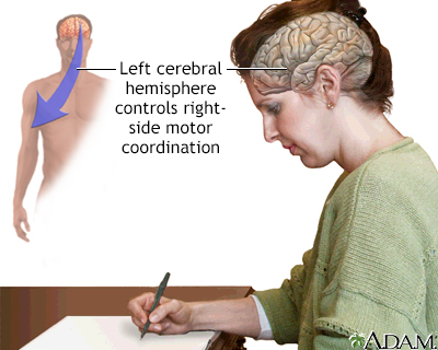 Left cerebral hemisphere - function
