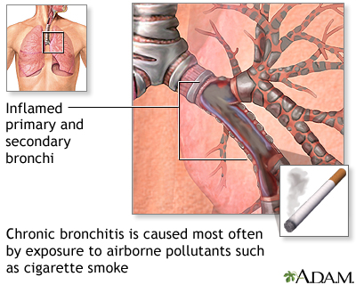 Causes of chronic bronchitis