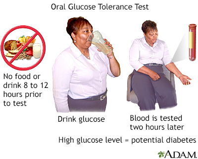 Oral glucose tolerance test