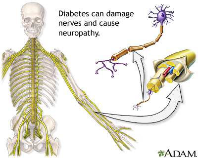 Diabetes and nerve damage