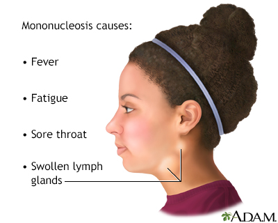 Infectious mononucleosis