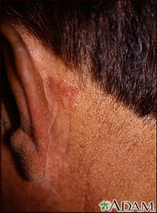 Skin cancer, basal cell carcinoma - behind ear