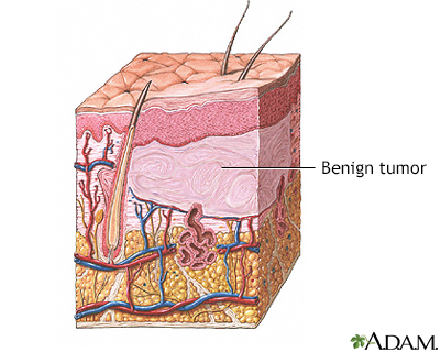 Benign tumor of the skin