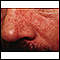 Dermatitis, seborrheic - close-up