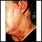Herpes zoster (shingles) on the neck and cheek
