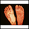 Sturge-Weber syndrome - soles of feet